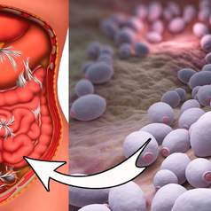 Кандидоз кишечника