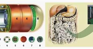 Видеокапсула позволяет исследовать кишечник без дискомфорта