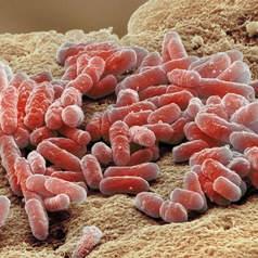 Лактобациллы (лактобактерии)