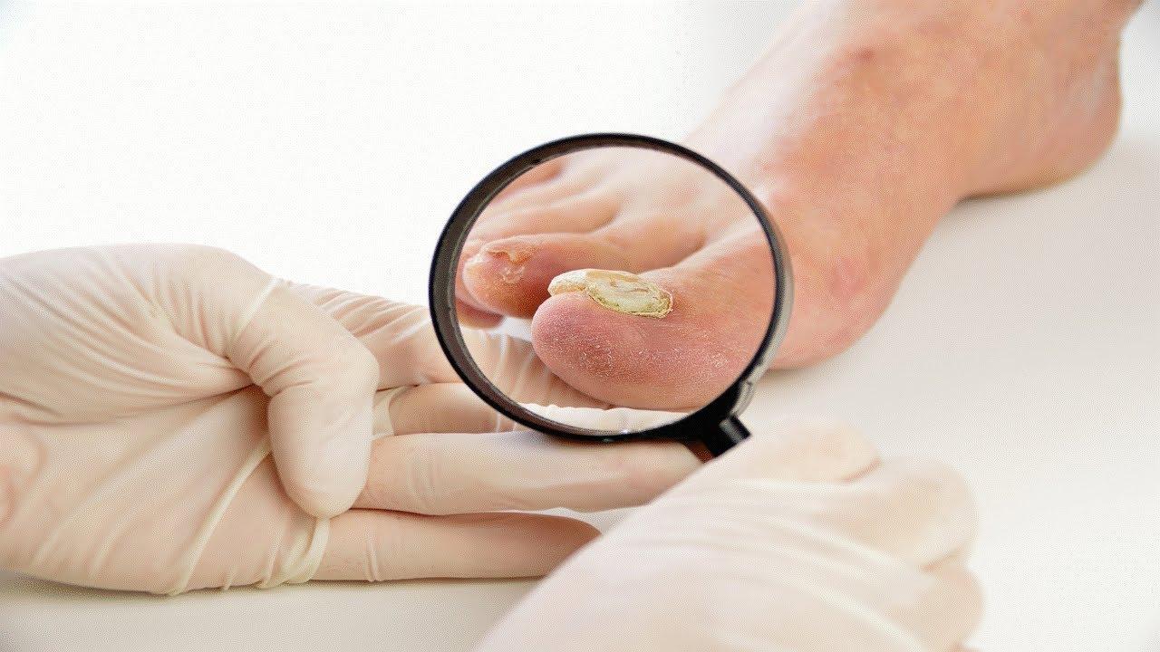 То, что вы хотели знать о грибковых заболеваниях