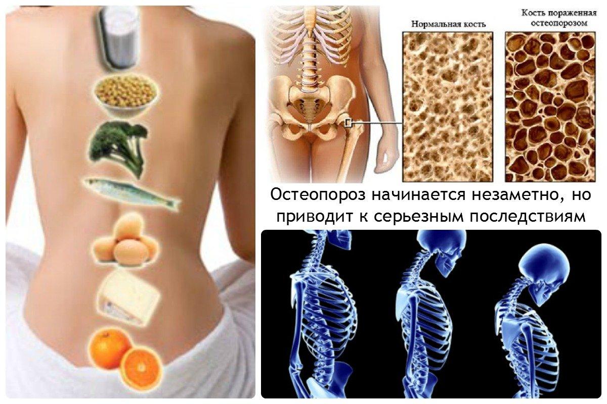 Женский организм скрывает систему защиты от остеопороза