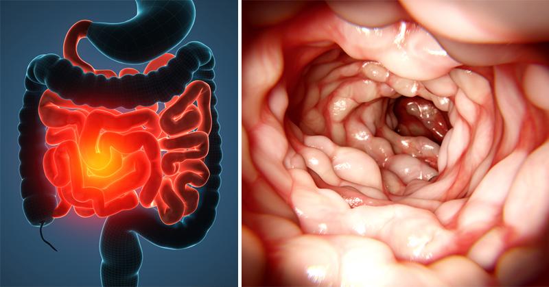 Несколько необычных признаков ухудшившегося состояния кишечника