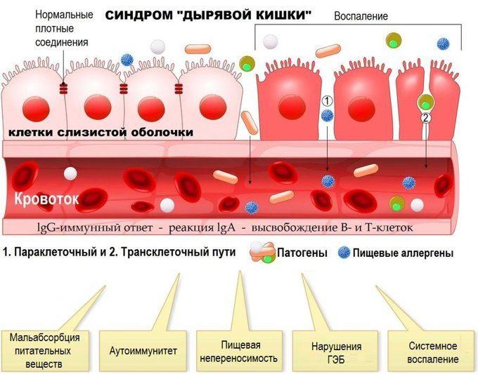 Разработан неинвазивный метод диагностики «дырявого кишечника» – по соотношению бактерий