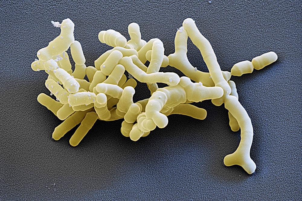 Способ лечения дисбактериоза кишечника