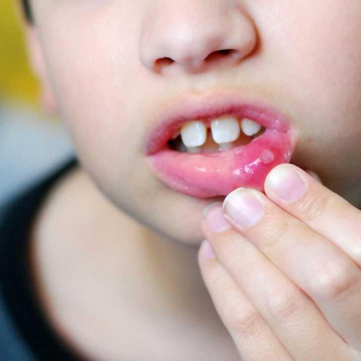 Характер нарушений системы пищеварения и вегетативного гомеостаза у детей с хроническим рецидивирующим афтозным стоматитом