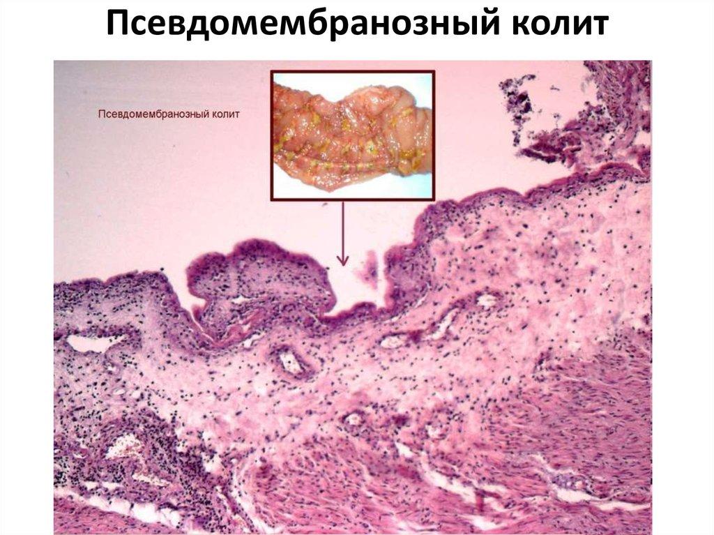 Антибиотикоассоциированная диарея и псевдомембранозный колит
