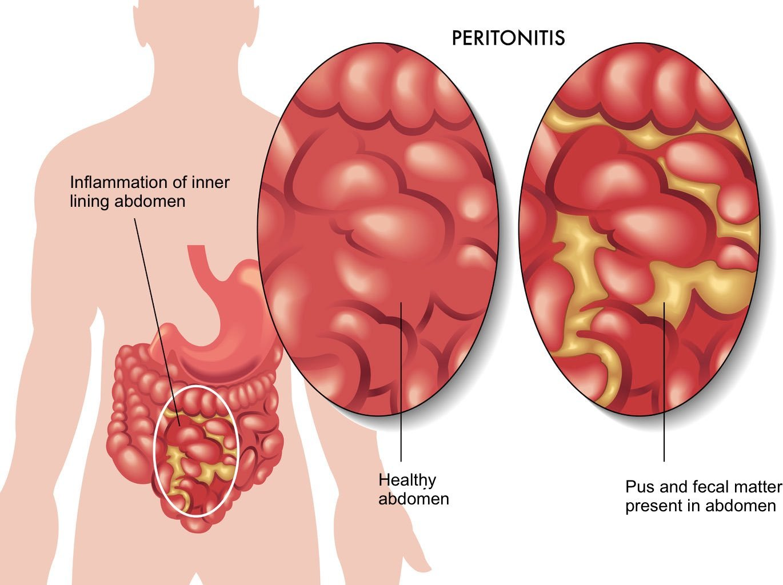 Кому и как лечить пациента, перенесшего перитонит?