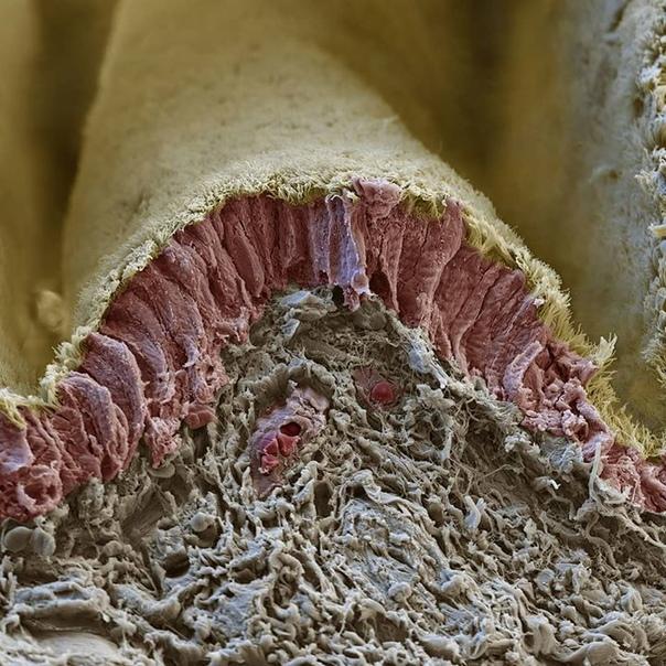 Состояние местного иммунитета слизистых оболочек бронхов и кишечника у больных хроническим обструктивным бронхитом, ассоциированным с кишечным дисбиозом