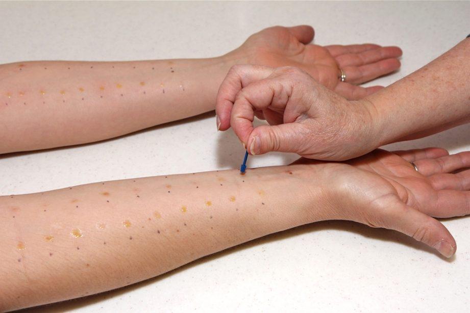 Клинический анализ корреляции дисбактериоза кишечника и паразитарных инвазий с выраженностью кожных аллергозов