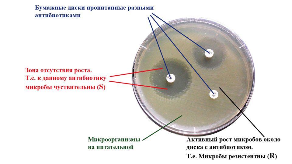 Методы определения чувствительности микроорганизмов к антибактериальным препаратам. Контроль качества определения чувствительности
