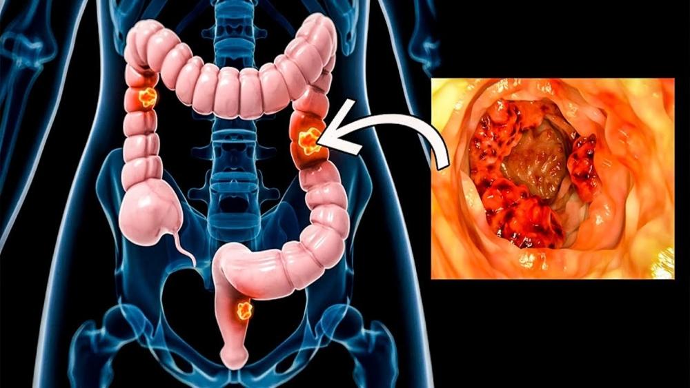 Инфекции желудочно-кишечного тракта у онкологических больных: современные подходы к лечению