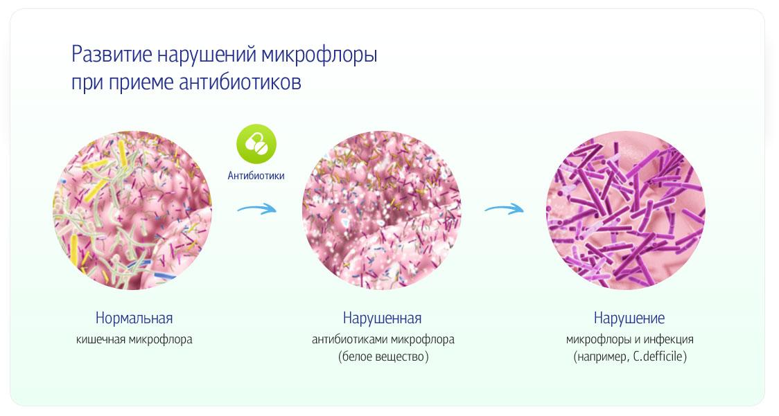 Новые возможности диагностики и лечения дисбиотических нарушений кишечника у детей