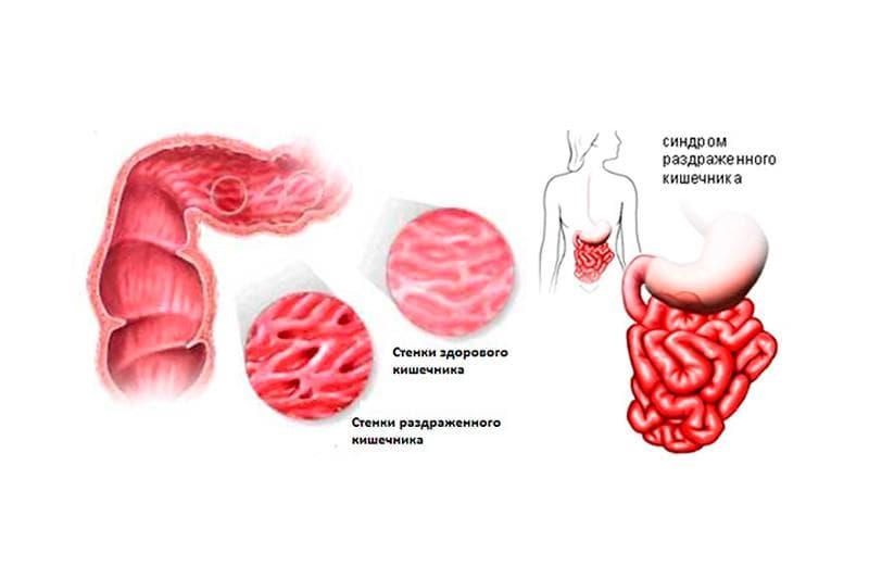 Синдром раздраженной кишки, ассоциированный с дисбактериозом
